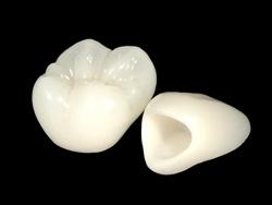 審美歯科(セラミック・ジルコニアなど 白い人工物)